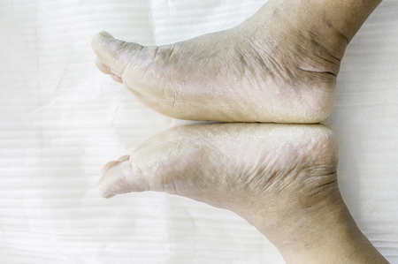 Foot fungus is caused by dermatophytes water frequently. Stock Photo