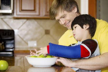 Vader helpt gehandicapte zoon zetten fruit in een kom in de keuken. Zoon heeft cerebrale parese.