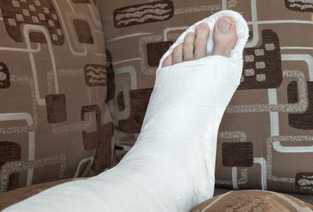 pierna rota: fractura en la pierna - tobillo en yeso
