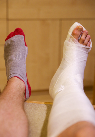 Broken ankle in hwite gypsum Stock Photo
