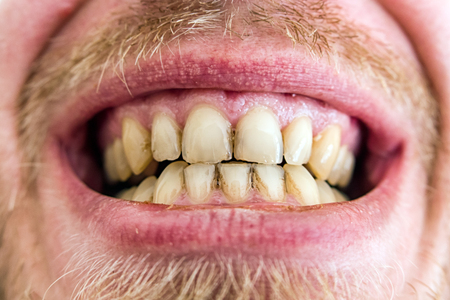 yellow teeth: Yellow teeth plaque - close up view