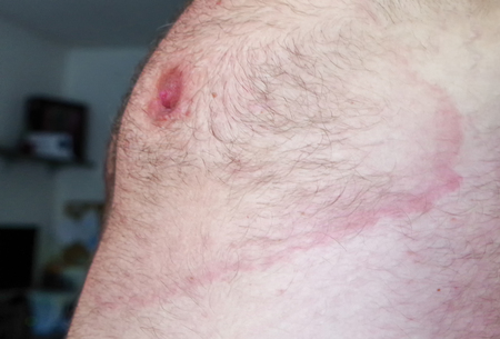Lyme borreliosis - infectious disease - erythema migrans