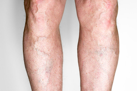 Varicose veins on a male legs