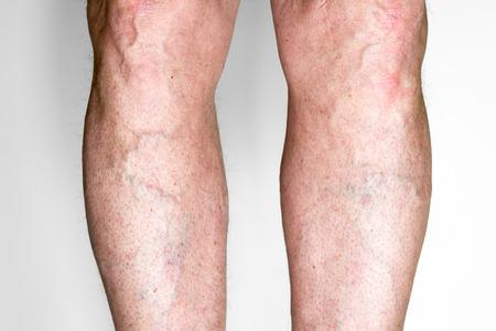 Varicose veins on a male legs