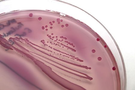 E. coli growing on an agar plate photo
