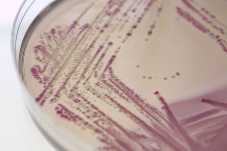 E. coli on differential agar