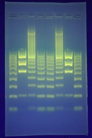 아가 로스 젤에 DNA의 분리 스톡 콘텐츠