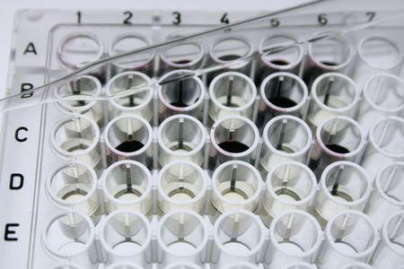 ELISA の 96 ウェルのマイクロタイター プレートとガラス ピペット 写真素材
