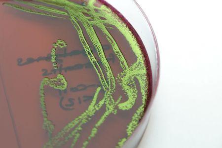 E. coli on differential agar photo