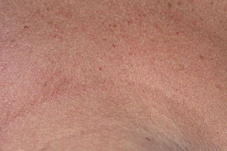Macro view of human skin