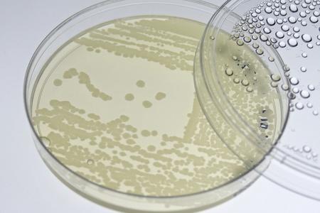 Bacterial T-streak on agar plate photo