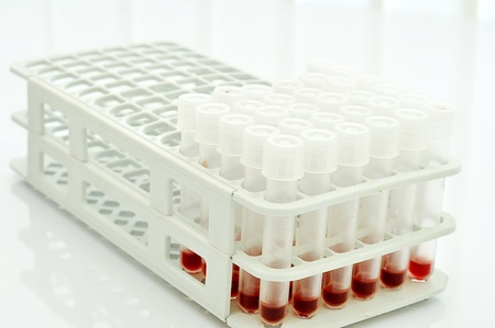 Blood sample in the rack Stock Photo