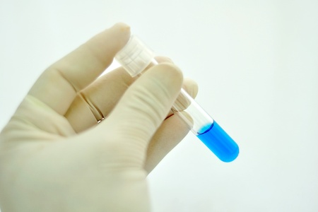 chemic: Holding test tube Stock Photo