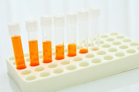 Test tubes with colored reagent photo