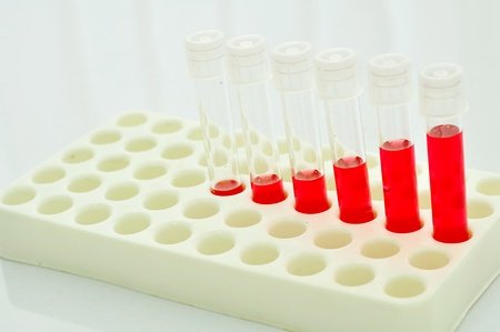 reagent: Test tubes with colored reagent Stock Photo