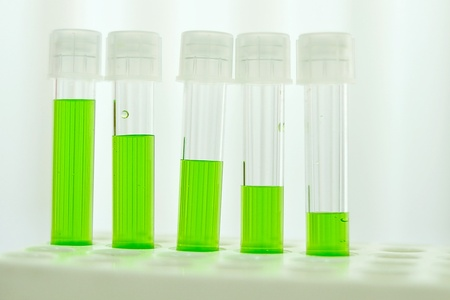 Test tubes with colored reagent Stock Photo - 10108570