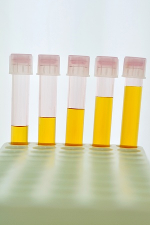 reagent: Test tubes with yellow reagent