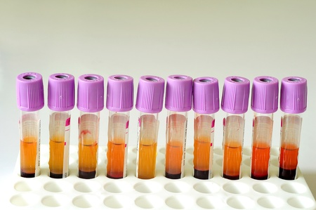 A row of blood sample tubes with purple cap Stock Photo