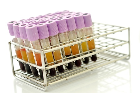 A row of blood sample in the rack