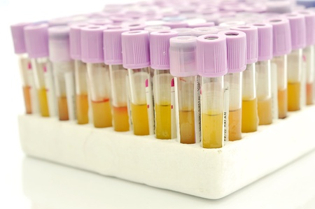 A row of blood sample in the stand photo