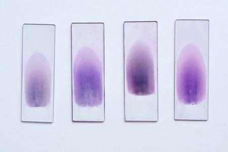 microscopy: Blood film