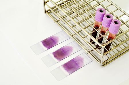 verschmieren: Blutprobe und Blutausstrich