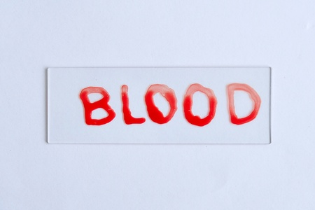 Blood slide Stock Photo - 10547575