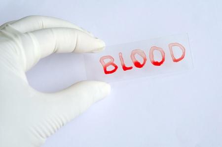 Blood slide Stock Photo - 10547580
