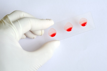 Blood group testing by slide method Stock Photo - 10547581
