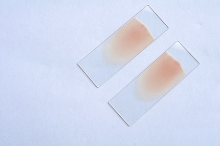 Blood film, unstain Stock Photo - 10659836
