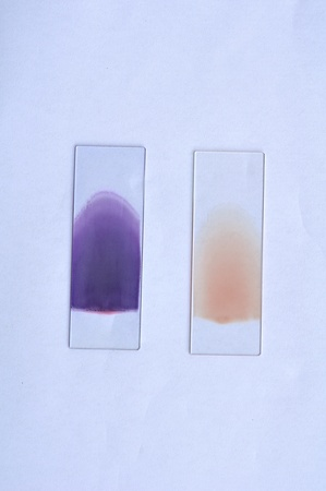 blood smear: Blood film, stain and unstain