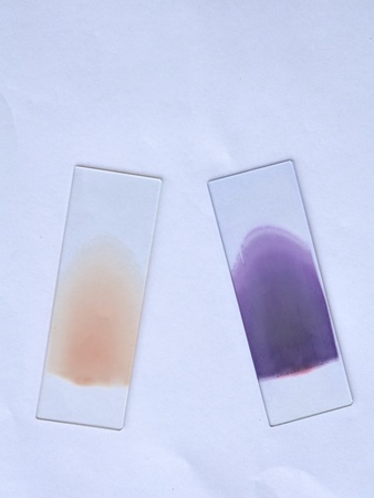 Blood film, stain and unstain photo