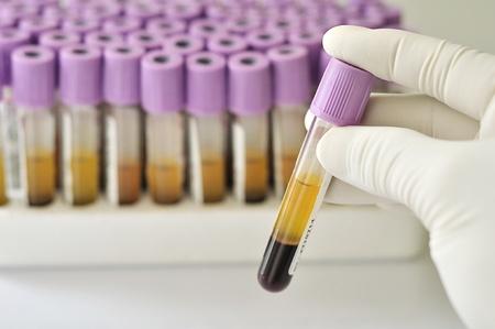 Blood sample photo