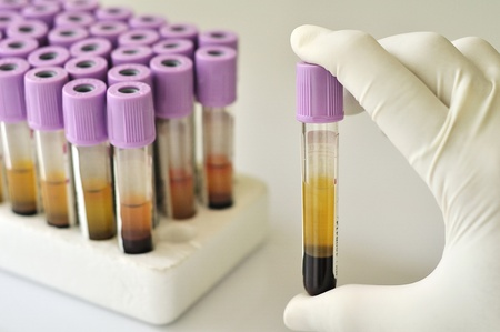 Blood sample Stock Photo - 10782294