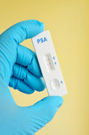 psa: PSA positive