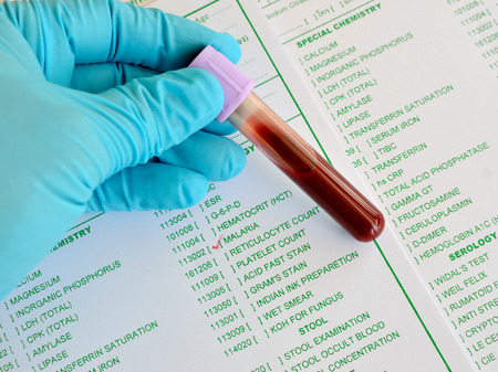 malaria: Blood sample for malaria testing