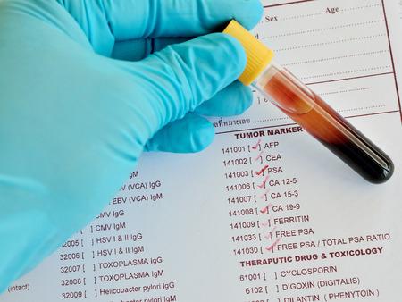 tumor: Blood sample for tumor marker testing Stock Photo