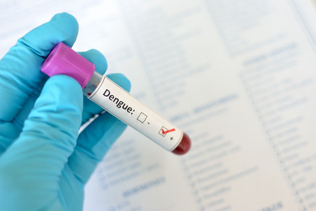 hemorrhagic: Dengue virus positive Stock Photo