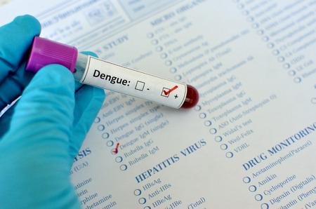 dengue: Virus Dengue positiva