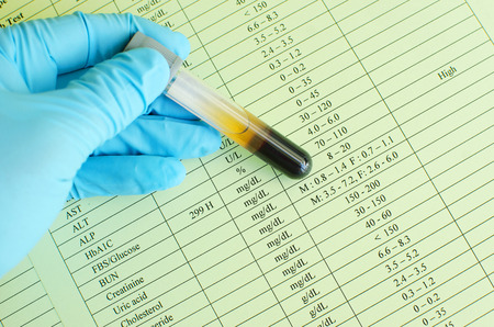 hematology: High blood sugar result Stock Photo
