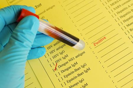 fever: Dengue positive Stock Photo