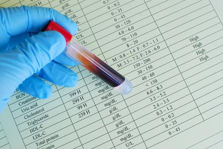 hematology: High lipid profile results Stock Photo