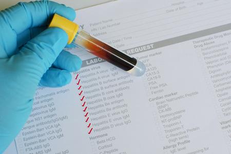 hepatitis: Hepatitis testing