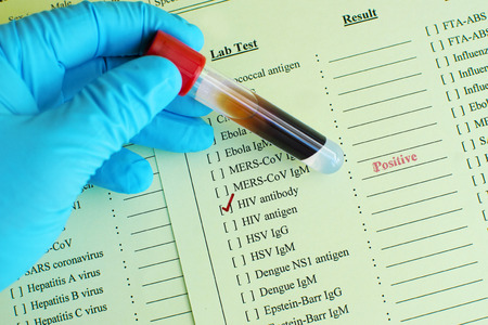 blood test: HIV positive Stock Photo