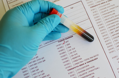 test: Blood sample for AFP testing