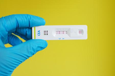 blood test: CEA tumor marker positive