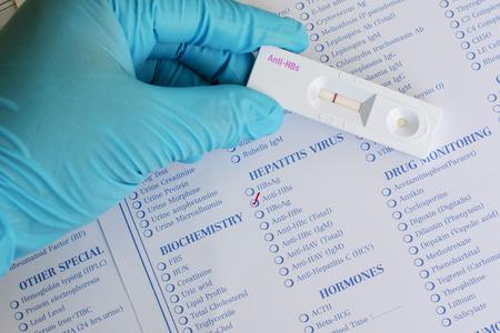 antibody: Anti-HBs Hepatitis B antibody negative