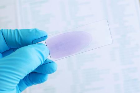 plasmodium: Blood film for microscopic examination