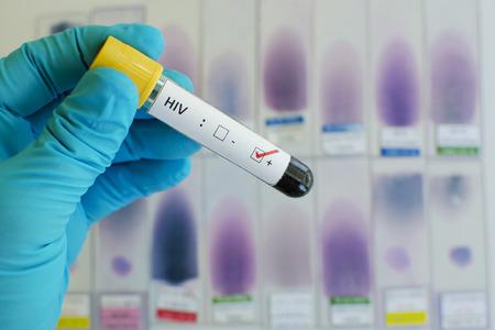 virus organism: HIV positive Stock Photo