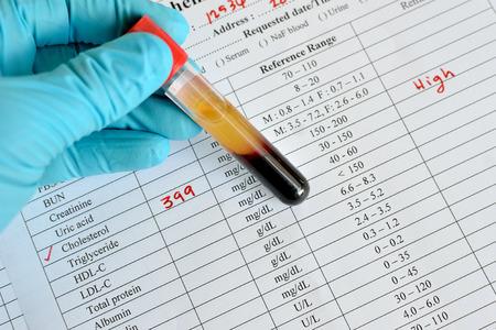 hematology: High cholesterol